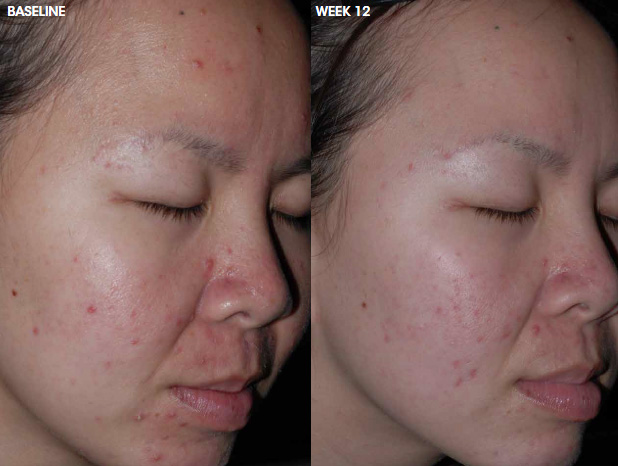 Aczone acne treatment — before and after photo #1