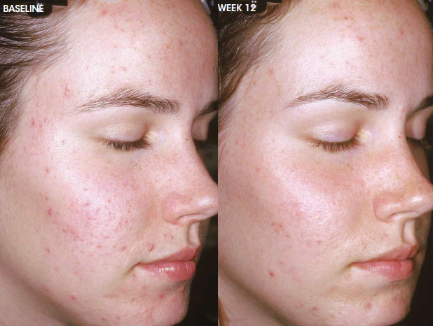 Aczone acne treatment — before and after photo #4