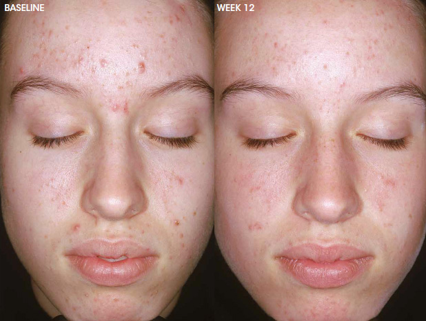 Aczone acne treatment — before and after photo #5